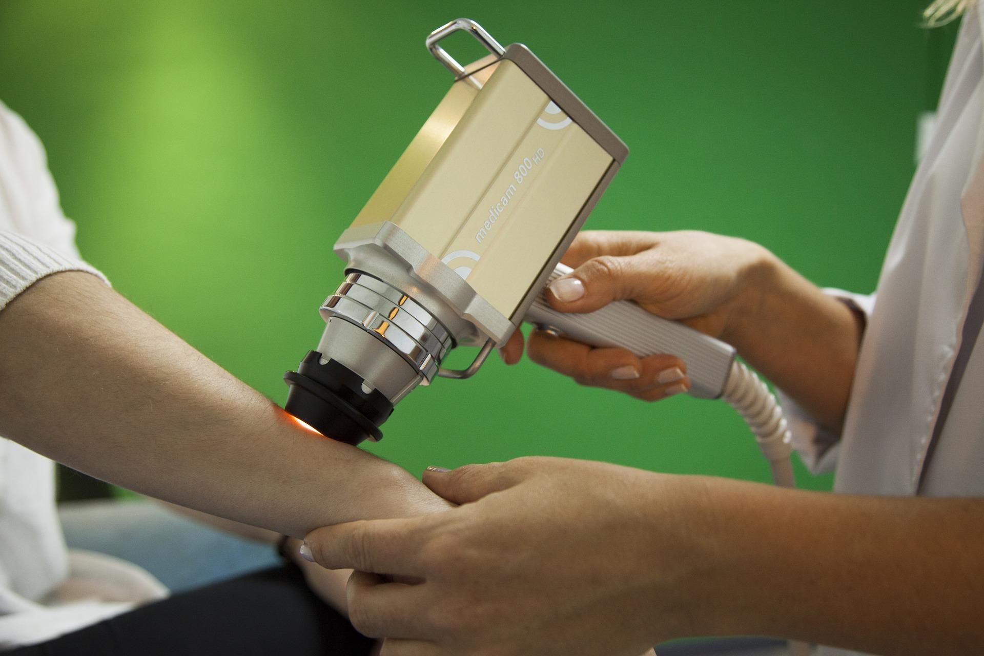 Terapia u dermatologa - laserem